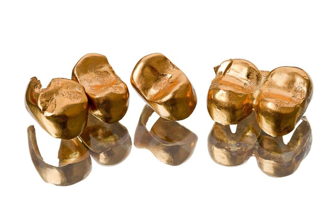скупка зубного золота
